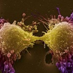 prostate-cancer-cells