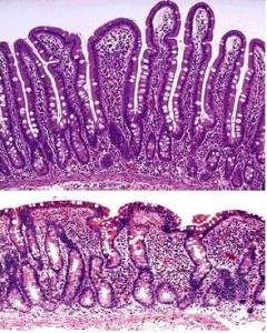 Above: Normal villi; Below: Celiac Disease