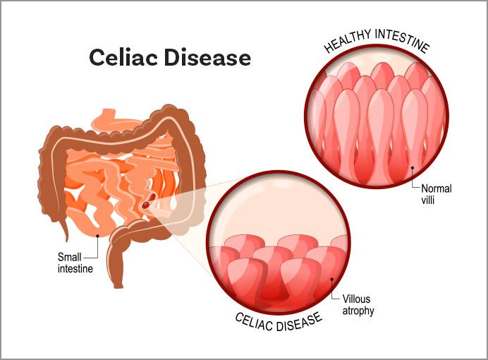 What Is Celiac Disease Celiac Disease Foundation